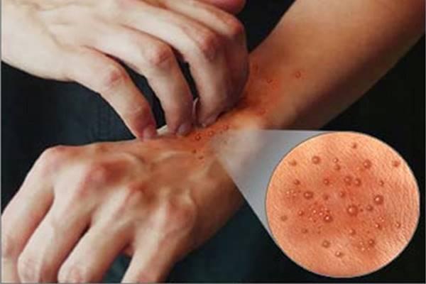 Gejala Sebab dan Pengobatan Penyakit Dermatitis